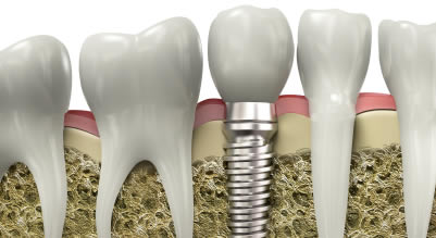 Dental Implants treatment process
