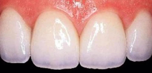 After White Fillings treatment