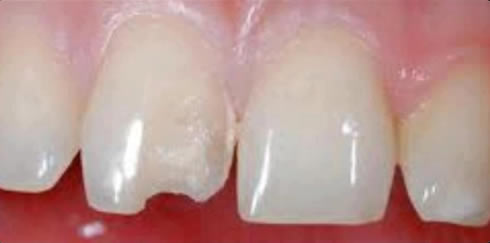 Before White Fillings treatment